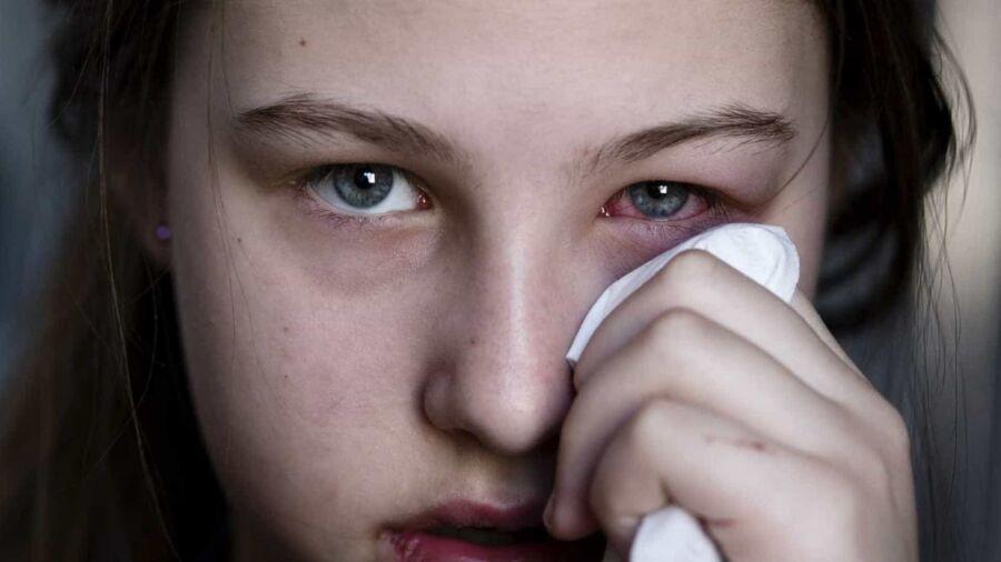 Queimadas e tempo seco aumentam os casos de doenças oculares